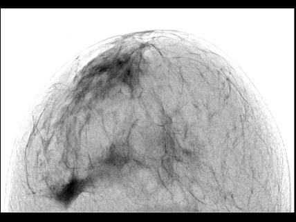mammografibild svartvit inverterad
