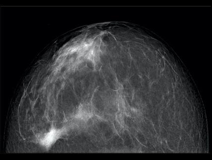 mammografibild svartvit